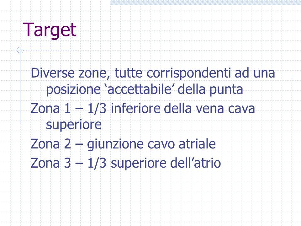 Target Diverse zone, tutte corrispondenti ad una posizione accettabile della punta Zona 1 – 1/3 inferiore della vena cava superiore Zona 2 – giunzione