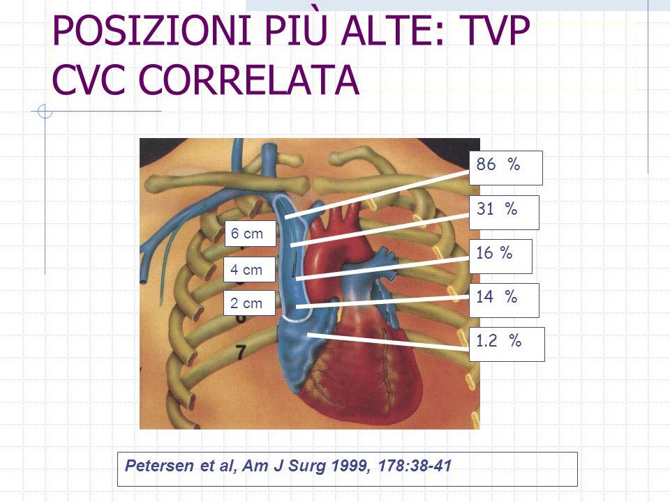 Petersen et al, Am J Surg 1999, 178:38-41 2 cm 4 cm 6 cm 86 % 31 % 16 % 14 % 1.2 % POSIZIONI PIÙ ALTE: TVP CVC CORRELATA
