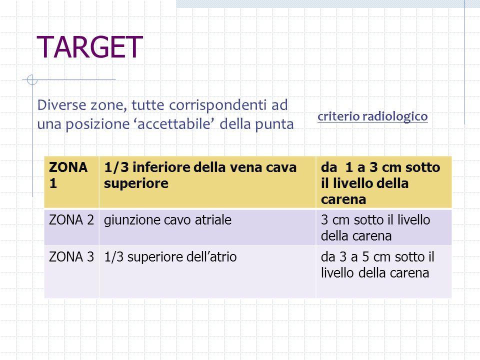 TARGET ZONA 1 1/3 inferiore della vena cava superiore da 1 a 3 cm sotto il livello della carena ZONA 2giunzione cavo atriale3 cm sotto il livello dell