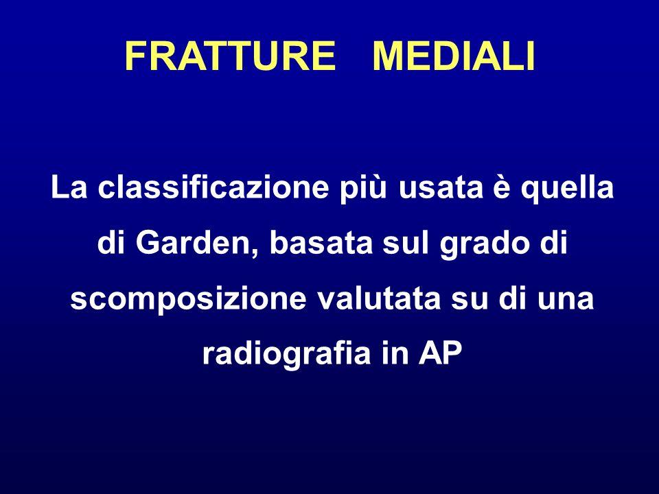 FRATTURE MEDIALI La classificazione più usata è quella di Garden, basata sul grado di scomposizione valutata su di una radiografia in AP