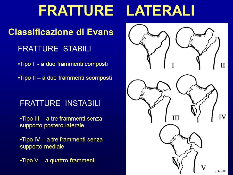 Classificazione di Evans FRATTURE STABILI Tipo I - a due frammenti composti Tipo II – a due frammenti scomposti FRATTURE INSTABILI Tipo III - a tre fr