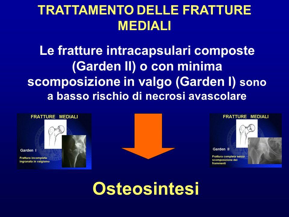 TRATTAMENTO DELLE FRATTURE MEDIALI Le fratture intracapsulari composte (Garden II) o con minima scomposizione in valgo (Garden I) sono a basso rischio