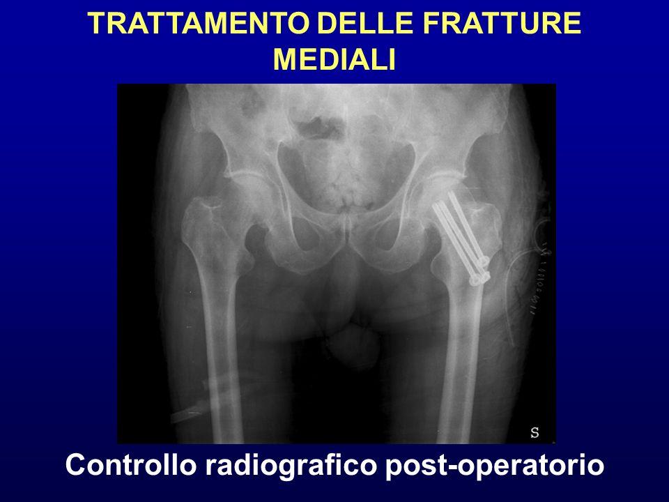 Controllo radiografico post-operatorio