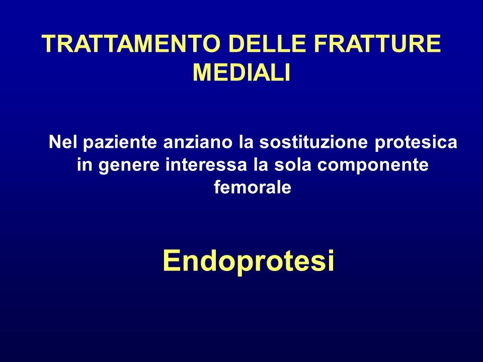 TRATTAMENTO DELLE FRATTURE MEDIALI Nel paziente anziano la sostituzione protesica in genere interessa la sola componente femorale Endoprotesi