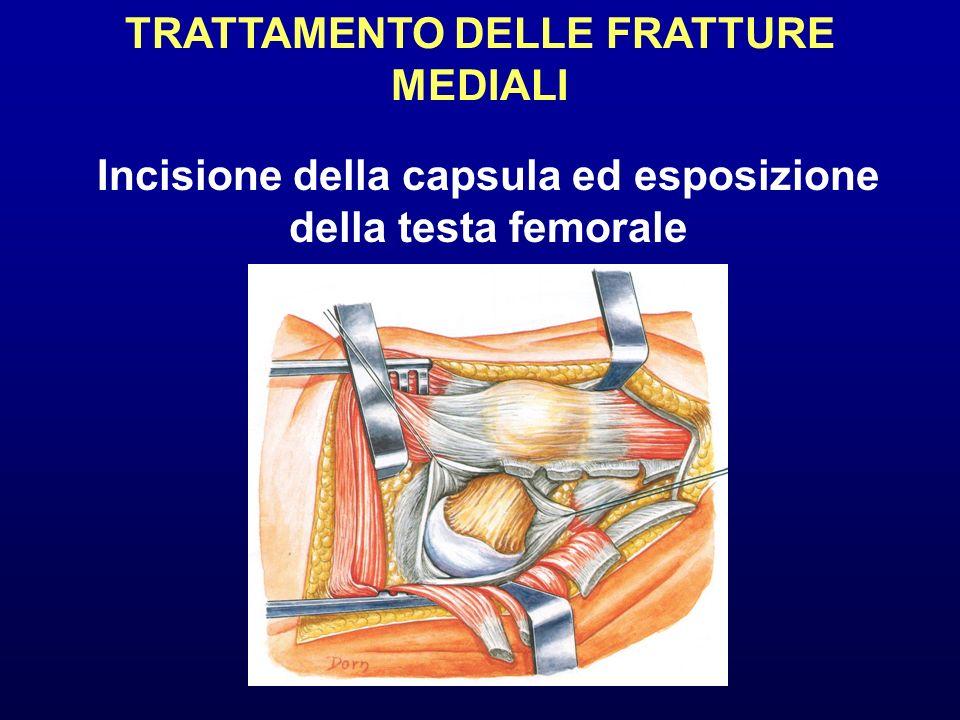 TRATTAMENTO DELLE FRATTURE MEDIALI Incisione della capsula ed esposizione della testa femorale