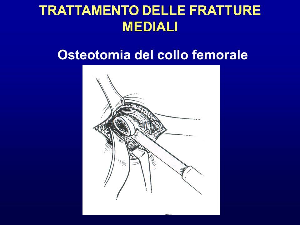 TRATTAMENTO DELLE FRATTURE MEDIALI Osteotomia del collo femorale