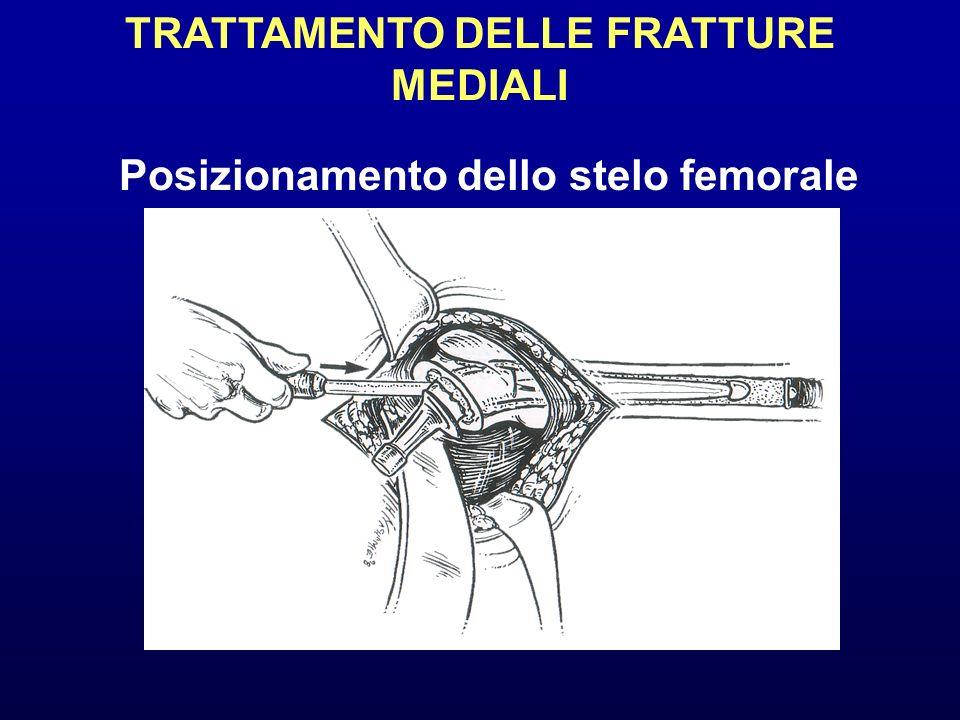 TRATTAMENTO DELLE FRATTURE MEDIALI Posizionamento dello stelo femorale