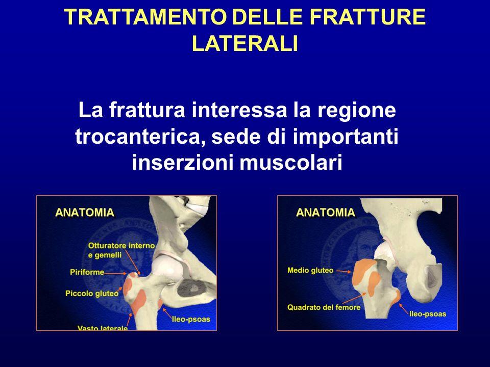 TRATTAMENTO DELLE FRATTURE LATERALI La frattura interessa la regione trocanterica, sede di importanti inserzioni muscolari