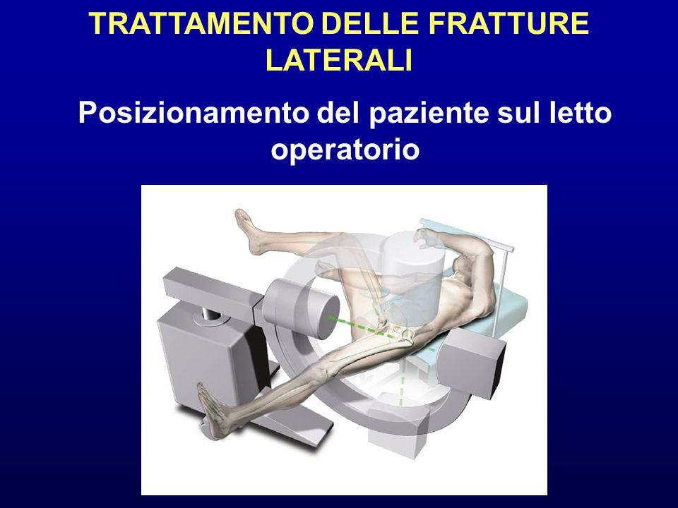 TRATTAMENTO DELLE FRATTURE LATERALI Posizionamento del paziente sul letto operatorio