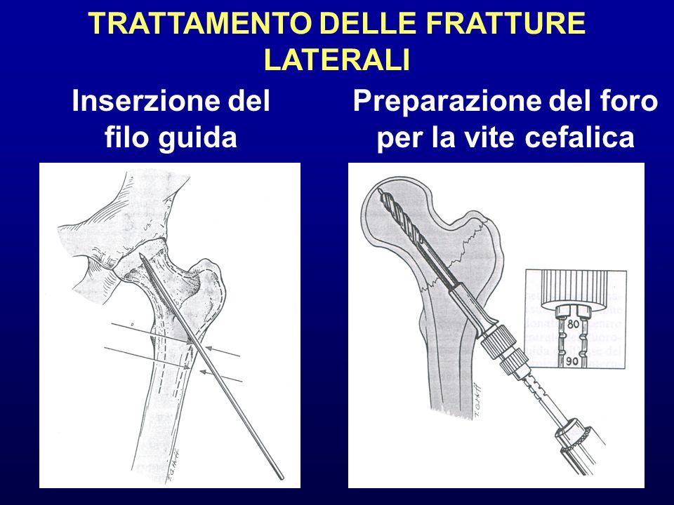 TRATTAMENTO DELLE FRATTURE LATERALI Inserzione del filo guida Preparazione del foro per la vite cefalica