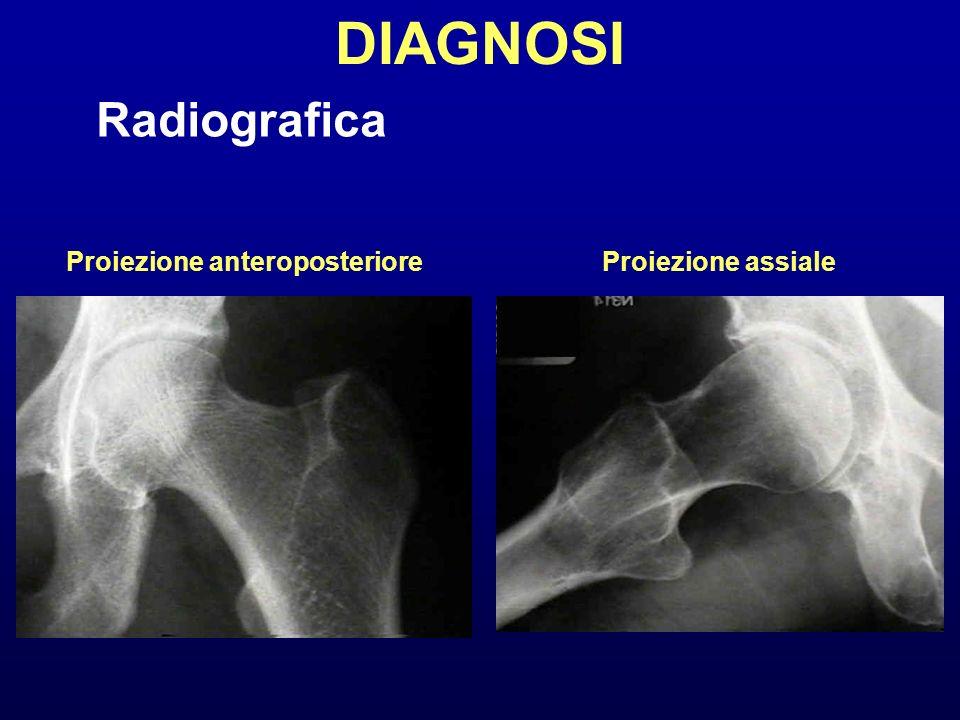 Radiografica Proiezione anteroposterioreProiezione assiale