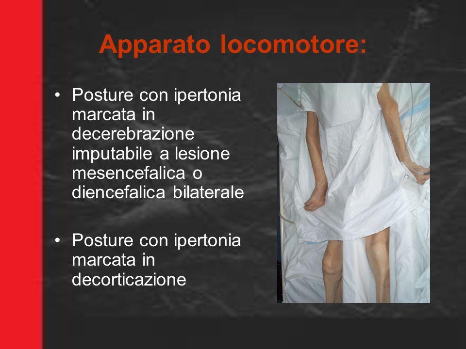 Apparato locomotore: Posture con ipertonia marcata in decerebrazione imputabile a lesione mesencefalica o diencefalica bilaterale Posture con ipertoni