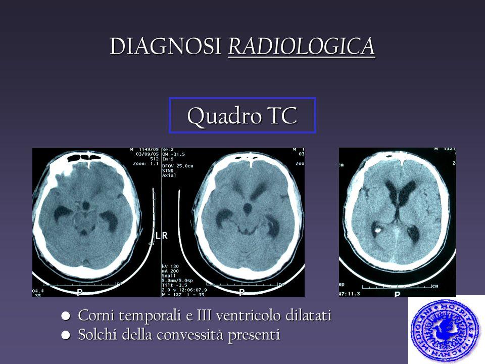 DIAGNOSI RADIOLOGICA Quadro TC Corni temporali e III ventricolo dilatati Corni temporali e III ventricolo dilatati Solchi della convessità presenti So