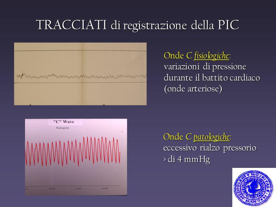 Onde C fisiologiche : variazioni di pressione durante il battito cardiaco (onde arteriose) Onde C patologiche : eccessivo rialzo pressorio > di 4 mmHg