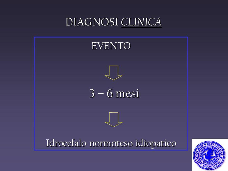 DIAGNOSI CLINICA EVENTO Idrocefalo normoteso idiopatico 3 – 6 mesi