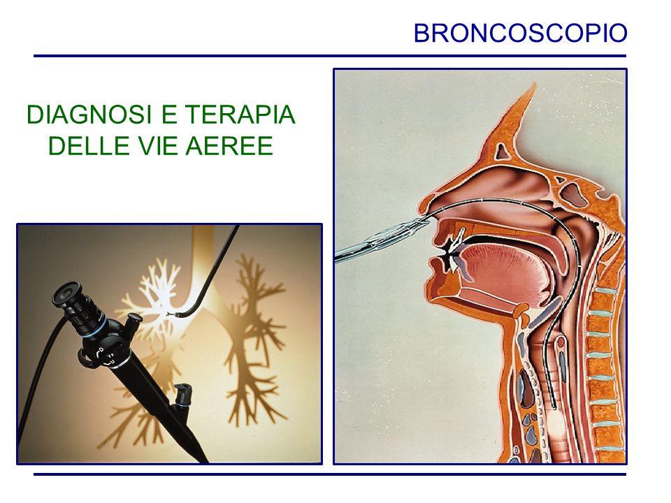 BRONCOSCOPIO DIAGNOSI E TERAPIA DELLE VIE AEREE
