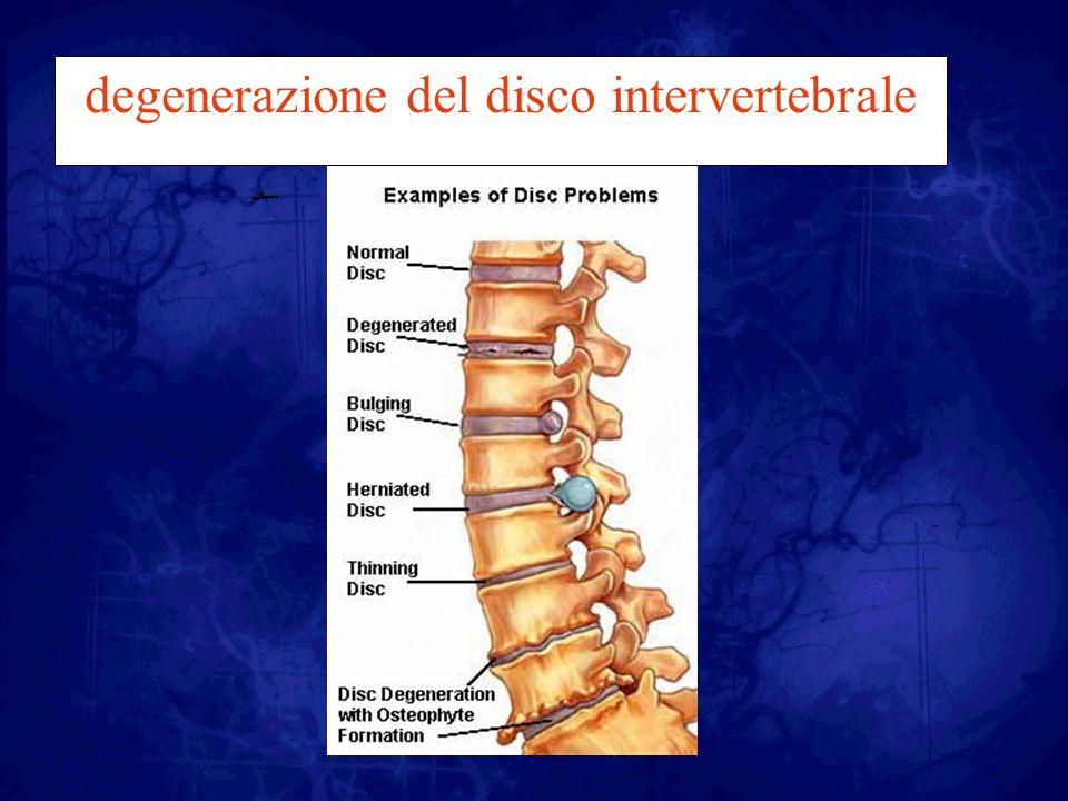 degenerazione del disco intervertebrale