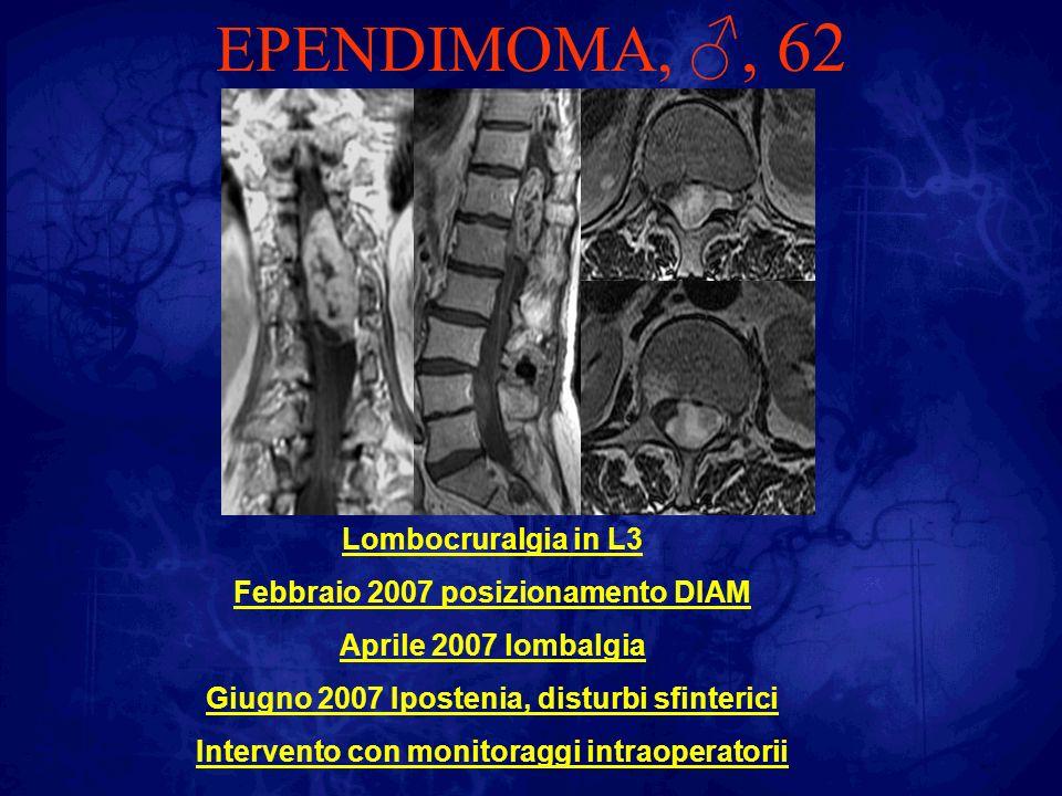 EPENDIMOMA,, 62 Lombocruralgia in L3 Febbraio 2007 posizionamento DIAM Aprile 2007 lombalgia Giugno 2007 Ipostenia, disturbi sfinterici Intervento con