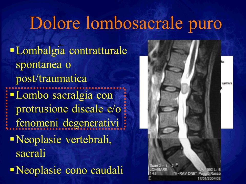 Dolore lombosacrale puro Lombalgia contratturale spontanea o post/traumatica Lombo sacralgia con protrusione discale e/o fenomeni degenerativi Neoplas