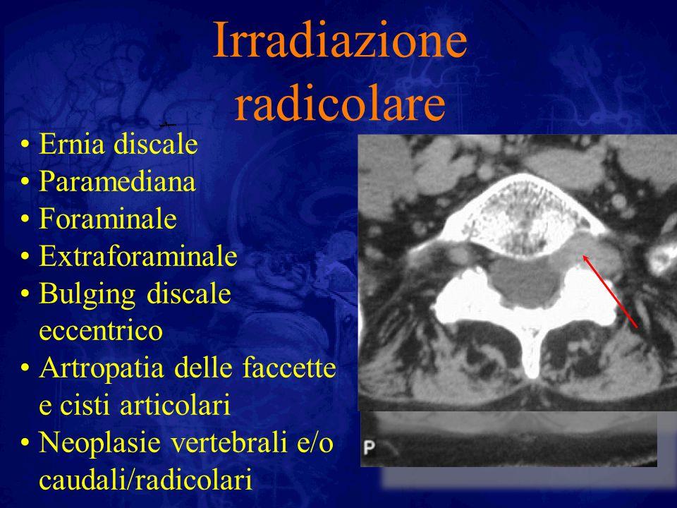 Irradiazione radicolare Ernia discale Paramediana Foraminale Extraforaminale Bulging discale eccentrico Artropatia delle faccette e cisti articolari N