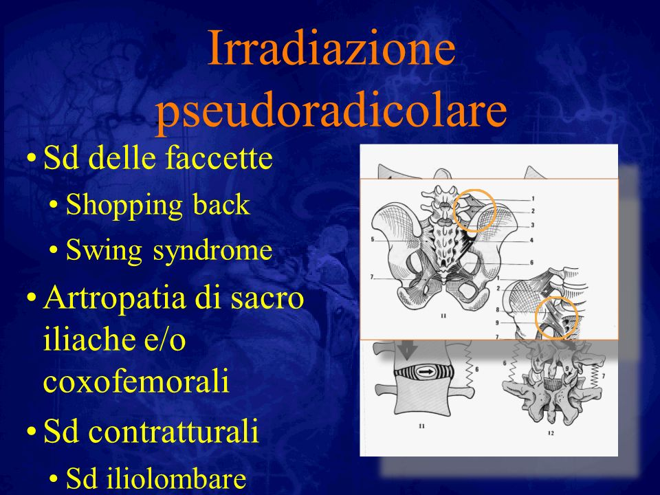 Irradiazione pseudoradicolare Sd delle faccette Shopping back Swing syndrome Artropatia di sacro iliache e/o coxofemorali Sd contratturali Sd iliolomb