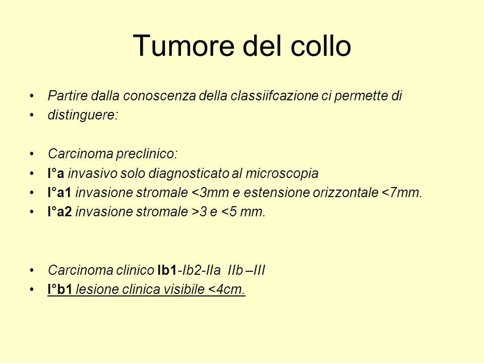 Tumore del collo Partire dalla conoscenza della classiifcazione ci permette di distinguere: Carcinoma preclinico: I°a invasivo solo diagnosticato al m