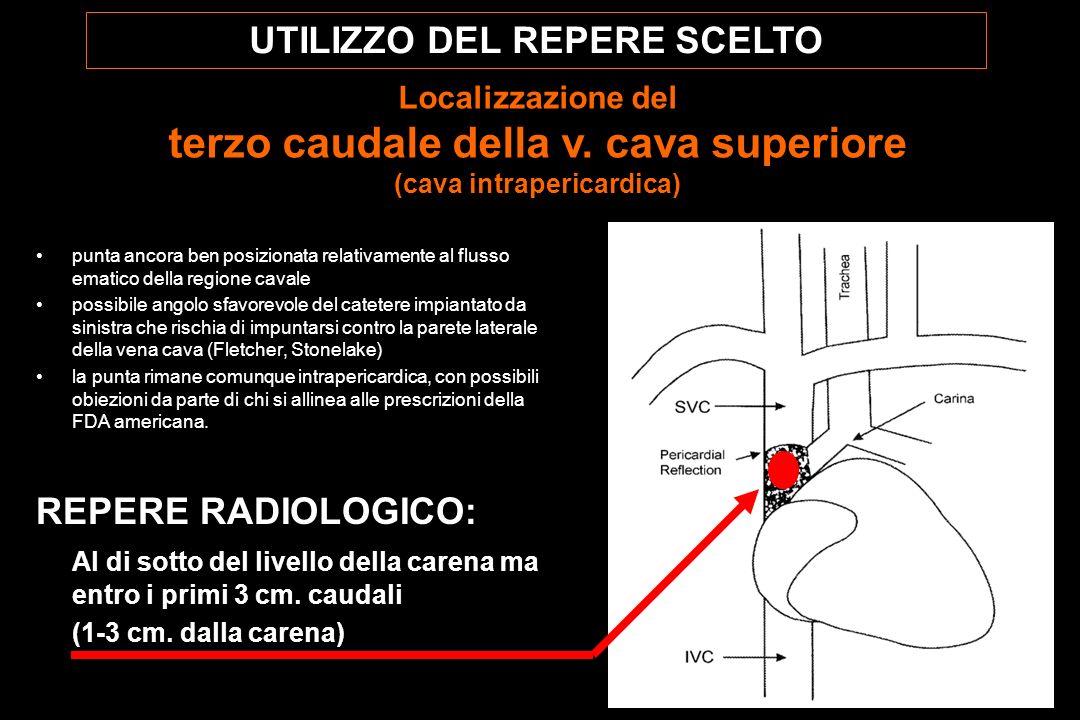 UTILIZZO DEL REPERE SCELTO Localizzazione del terzo caudale della v.
