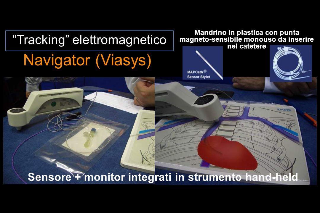 Navigator (Viasys) Tracking elettromagnetico Mandrino in plastica con punta magneto-sensibile monouso da inserire nel catetere Sensore + monitor integrati in strumento hand-held