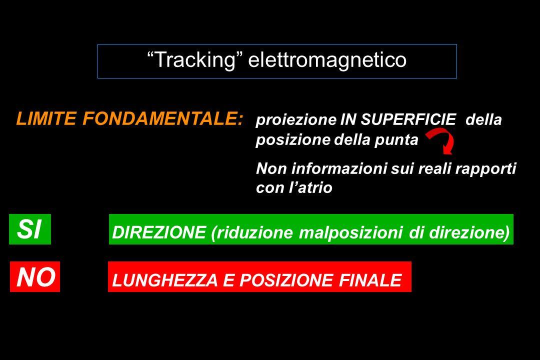 Tracking elettromagnetico LIMITE FONDAMENTALE: proiezione IN SUPERFICIE della posizione della punta Non informazioni sui reali rapporti con latrio SI DIREZIONE (riduzione malposizioni di direzione) NO LUNGHEZZA E POSIZIONE FINALE