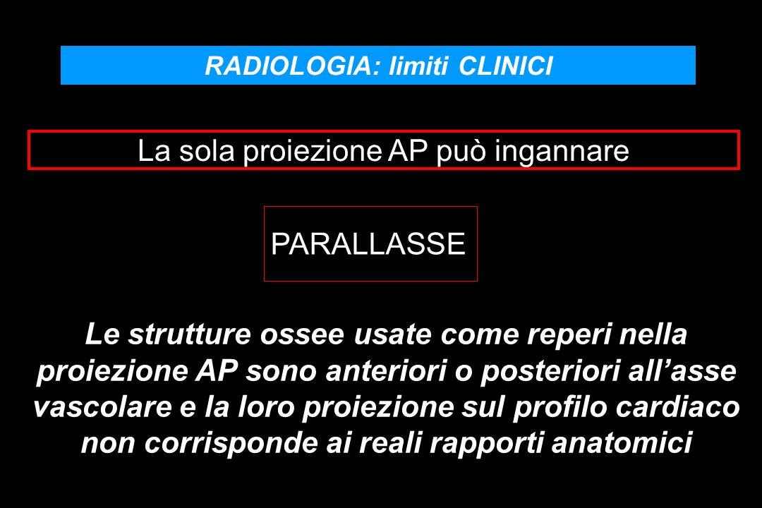 RADIOLOGIA: limiti CLINICI PARALLASSE Le strutture ossee usate come reperi nella proiezione AP sono anteriori o posteriori allasse vascolare e la loro proiezione sul profilo cardiaco non corrisponde ai reali rapporti anatomici La sola proiezione AP può ingannare