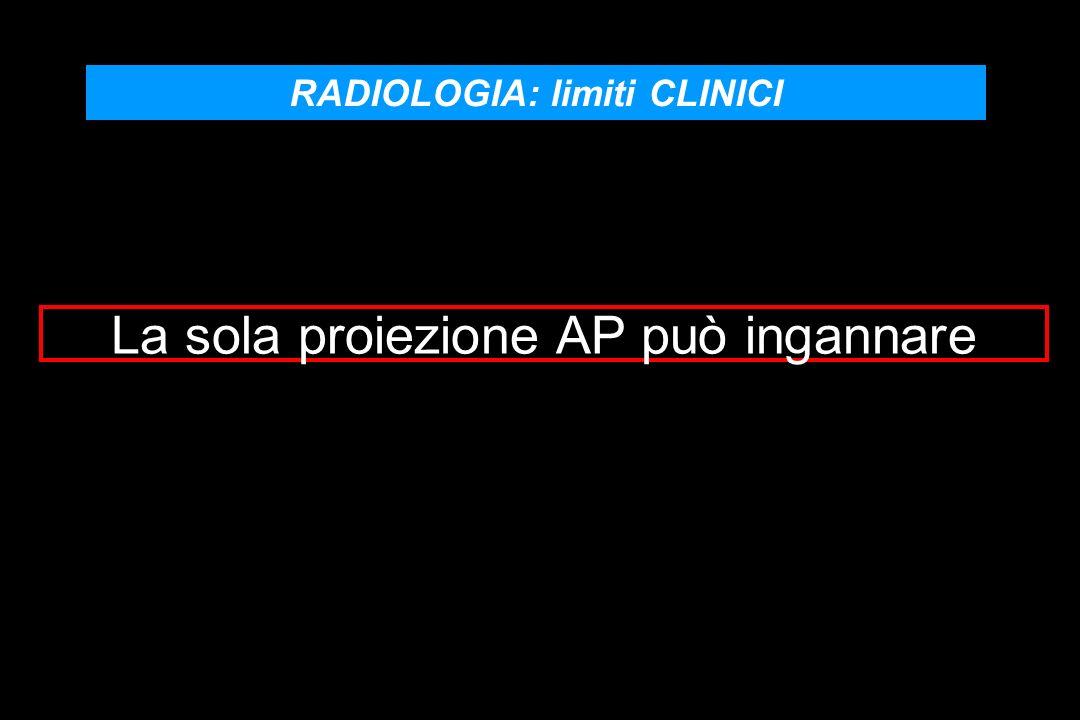 RADIOLOGIA: limiti CLINICI La sola proiezione AP può ingannare