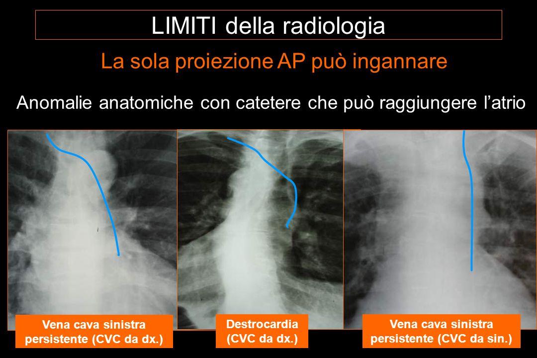 Anomalie anatomiche con catetere che può raggiungere latrio Vena cava sinistra persistente (CVC da dx.) Destrocardia (CVC da dx.) Vena cava sinistra persistente (CVC da sin.) La sola proiezione AP può ingannare LIMITI della radiologia