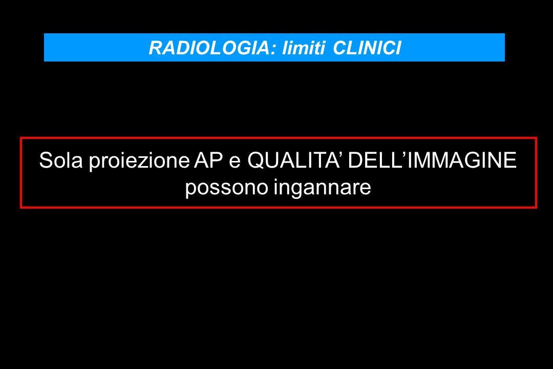 RADIOLOGIA: limiti CLINICI Sola proiezione AP e QUALITA DELLIMMAGINE possono ingannare