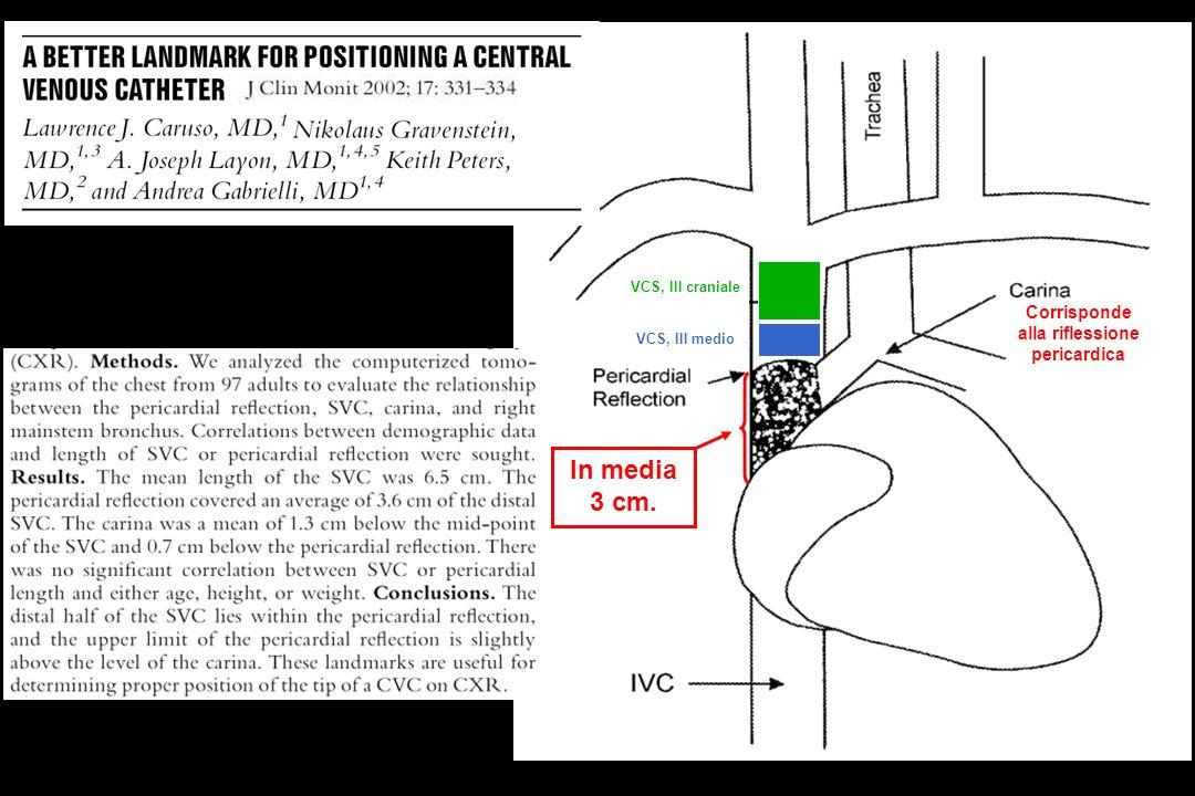 Corrisponde alla riflessione pericardica VCS, III craniale VCS, III medio