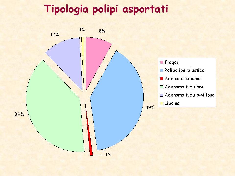 Tipologia polipi asportati