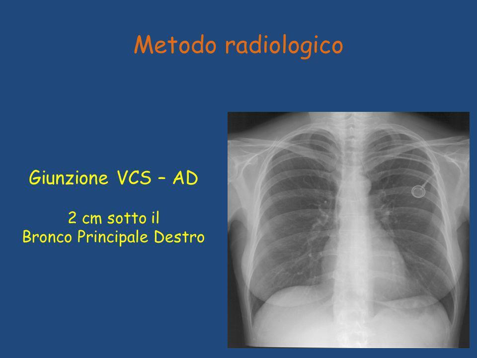 Metodo radiologico Giunzione VCS – AD 2 cm sotto il Bronco Principale Destro
