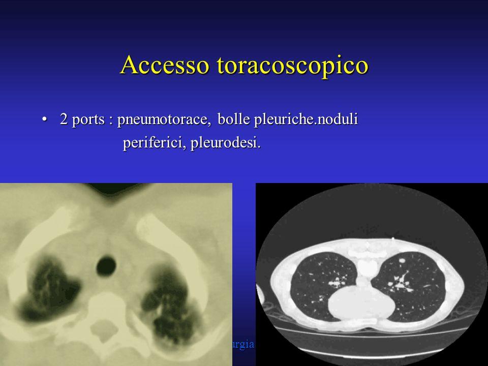 Struttura Complessa di Chirurgia Toracica A.O.R.N. A. Cardarelli - Napoli Accesso toracoscopico 2 ports : pneumotorace, bolle pleuriche.noduli2 ports
