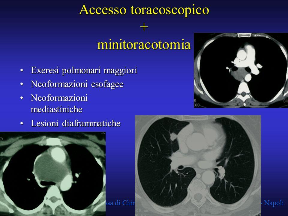 Struttura Complessa di Chirurgia Toracica A.O.R.N. A. Cardarelli - Napoli Accesso toracoscopico + minitoracotomia Exeresi polmonari maggioriExeresi po
