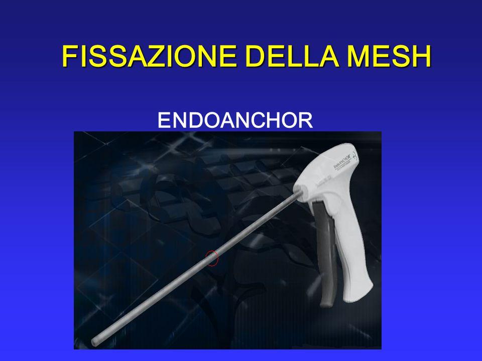 FISSAZIONE DELLA MESH ENDOANCHOR