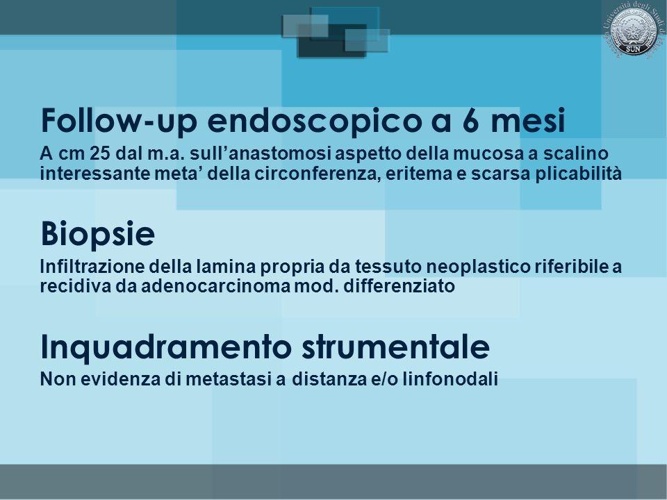 Follow-up endoscopico a 6 mesi A cm 25 dal m.a. sullanastomosi aspetto della mucosa a scalino interessante meta della circonferenza, eritema e scarsa