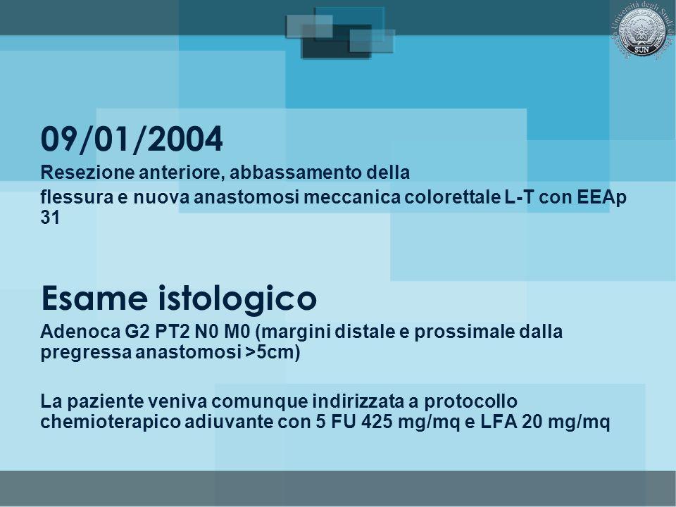 09/01/2004 Resezione anteriore, abbassamento della flessura e nuova anastomosi meccanica colorettale L-T con EEAp 31 Esame istologico Adenoca G2 PT2 N