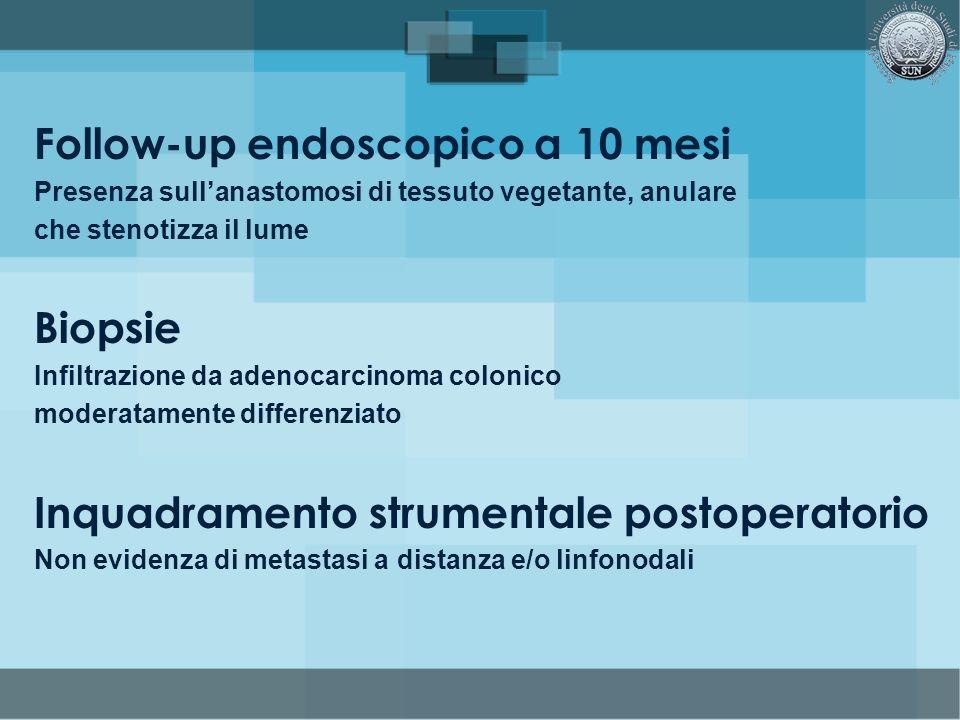 Follow-up endoscopico a 10 mesi Presenza sullanastomosi di tessuto vegetante, anulare che stenotizza il lume Biopsie Infiltrazione da adenocarcinoma c