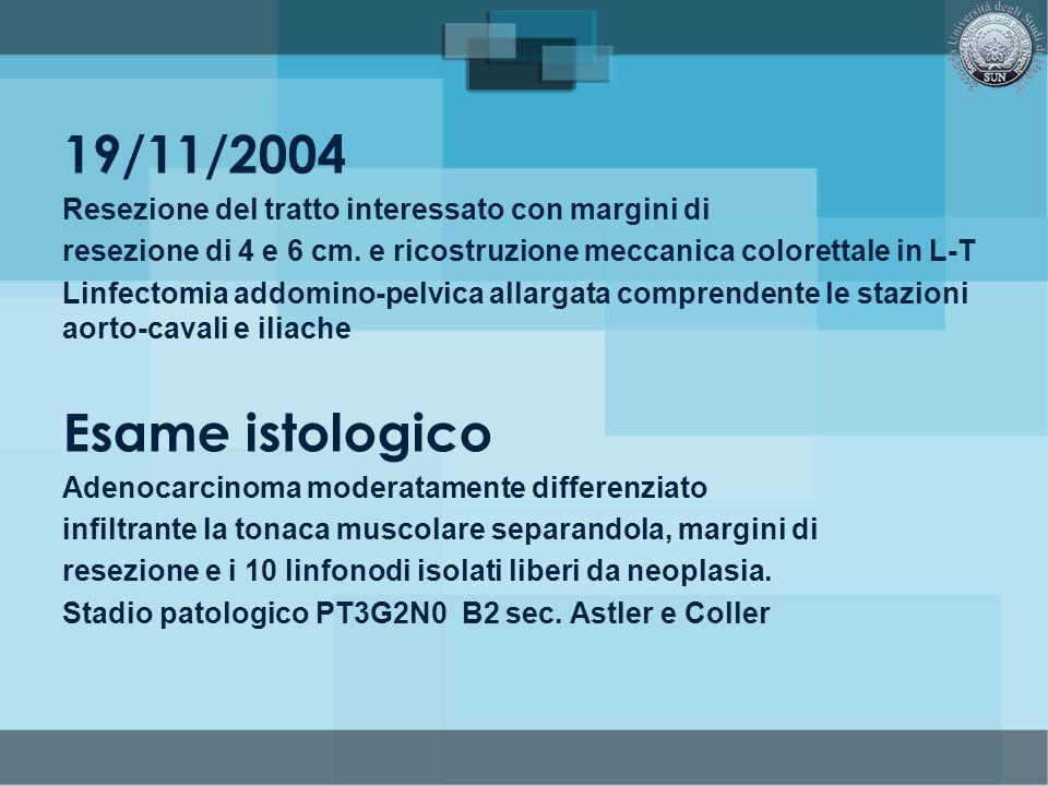 19/11/2004 Resezione del tratto interessato con margini di resezione di 4 e 6 cm. e ricostruzione meccanica colorettale in L-T Linfectomia addomino-pe