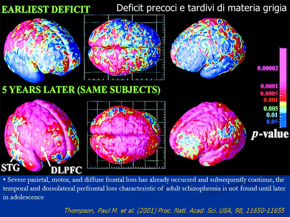 Thompson, Paul M. et al. (2001) Proc. Natl. Acad. Sci. USA, 98, 11650-11655 Severe parietal, motor, and diffuse frontal loss has already occurred and