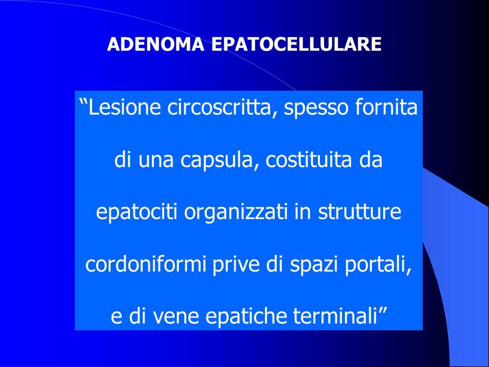 ADENOMA EPATOCELLULARE Lesione circoscritta, spesso fornita di una capsula, costituita da epatociti organizzati in strutture cordoniformi prive di spa