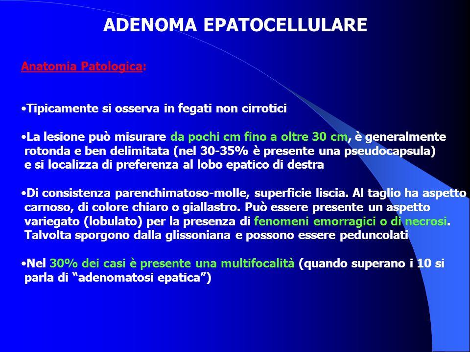 ADENOMA EPATOCELLULARE Anatomia Patologica: Tipicamente si osserva in fegati non cirrotici La lesione può misurare da pochi cm fino a oltre 30 cm, è g