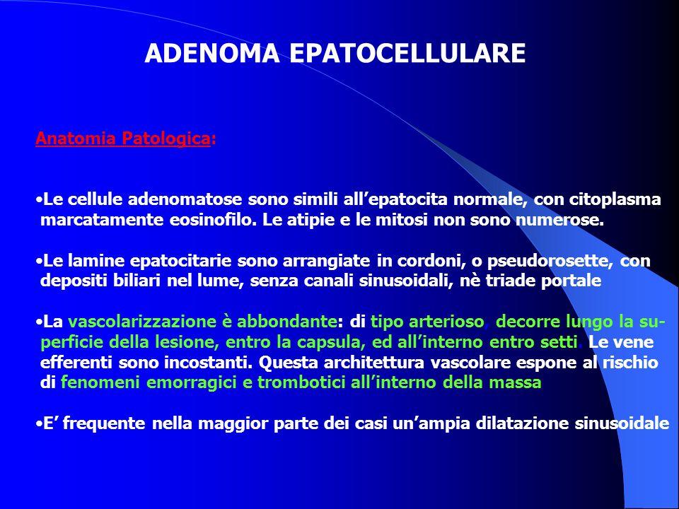 Anatomia Patologica: Le cellule adenomatose sono simili allepatocita normale, con citoplasma marcatamente eosinofilo. Le atipie e le mitosi non sono n
