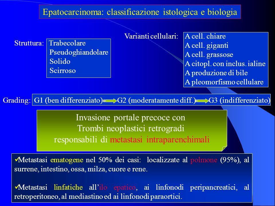 Epatocarcinoma: classificazione istologica e biologia Metastasi ematogene nel 50% dei casi: localizzate al polmone (95%), al surrene, intestino, ossa,