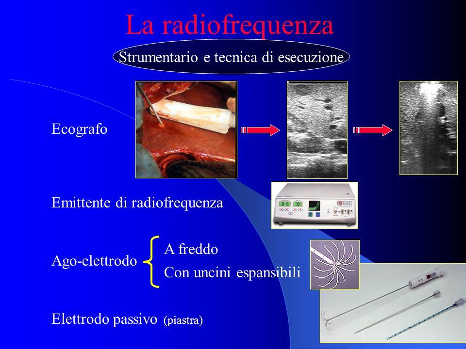 La radiofrequenza Ecografo Emittente di radiofrequenza Ago-elettrodo A freddo Con uncini espansibili Elettrodo passivo (piastra) Strumentario e tecnic
