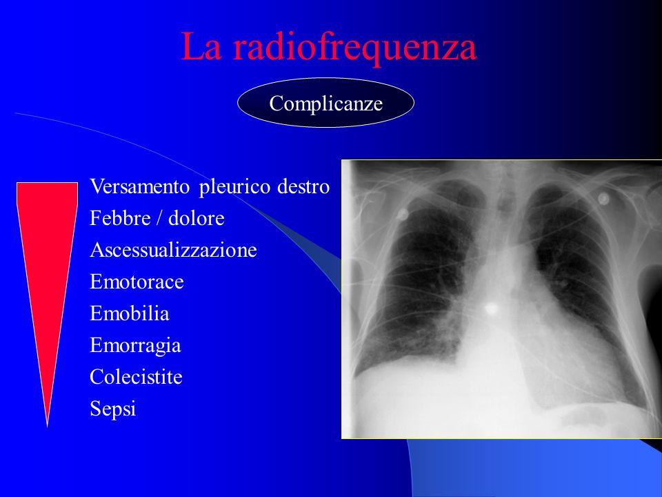 La radiofrequenza Versamento pleurico destro Febbre / dolore Ascessualizzazione Emotorace Emobilia Emorragia Colecistite Sepsi Complicanze